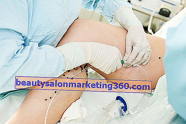 mogyoró levél visszér ha egy terhes nőnek visszérbetegsége van