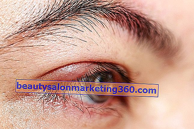a chalazion befolyásolja a látást