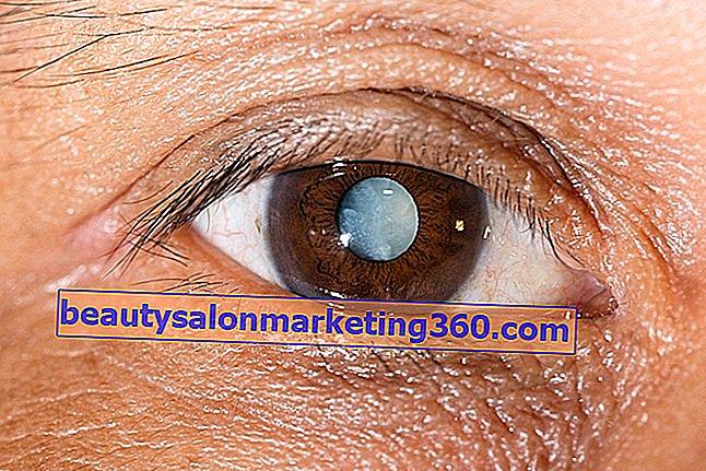 szemészeti fehér film a szemén